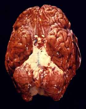 The Brain of meningitis